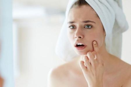 Čak 50 odsto žena se bori sa aknama: Rešite ih se kroz tri jednostavna koraka!