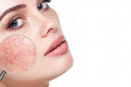 Beauty reporter: Nega osetljive kože lica