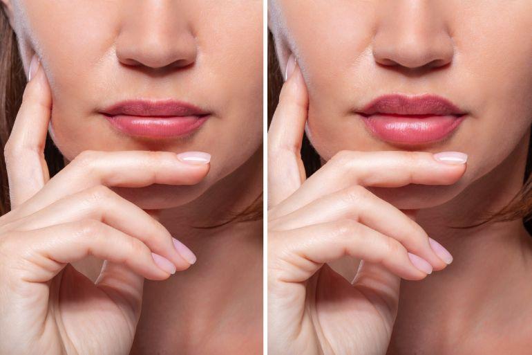 povećanje usana